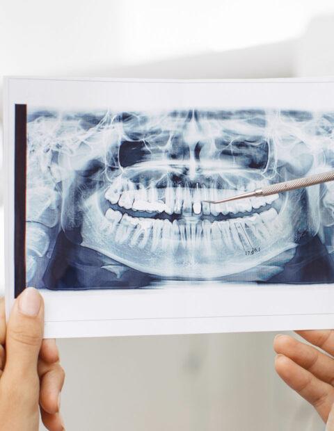 implantesgalerv2y