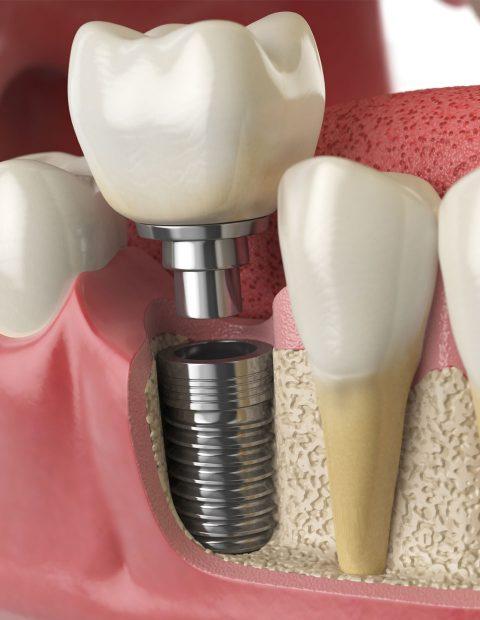 implantesgalery